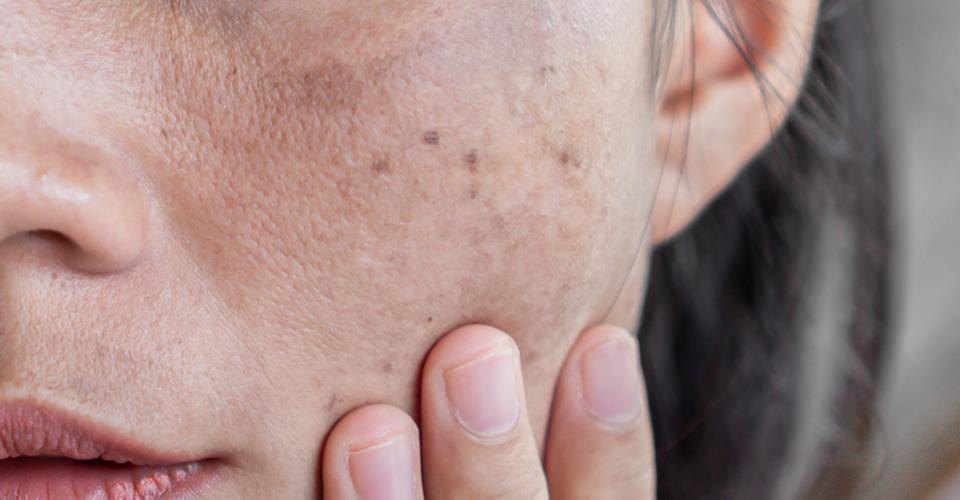 Melasma, a mancha que assombra as mulheres