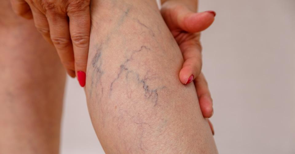 Varizes - Chegou a hora de conhecer melhor os tratamentos para esse problema